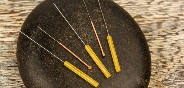 Acupuncture May Cool Hot Flashes