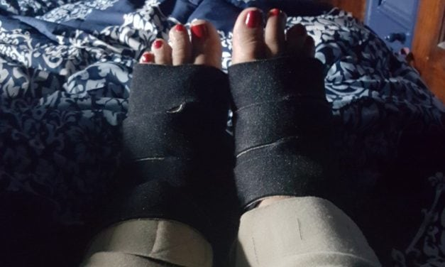 World Lymphedema Day: What Am I Gonna Do About My Legs?