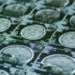 Alzheimer's Drug Targets People With Mild Cognitive Impairment. What Does That Mean?
